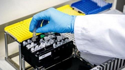 Dinkes Ambon : Kekurangan Laboratorium Uji Sampel dan Spesimen PCR